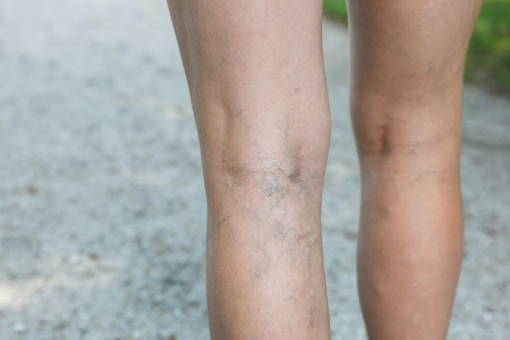Pregnant woman with varicose veins on her legs