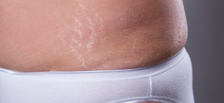 Silver colored stretch marks after pregnancy