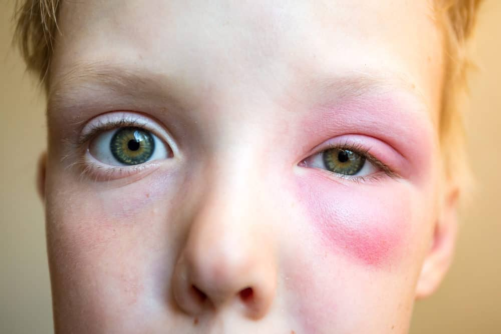 Little boy with big bee sting under the eye