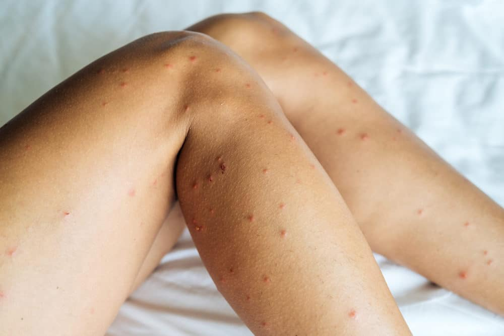 Female legs with many sand fly bites