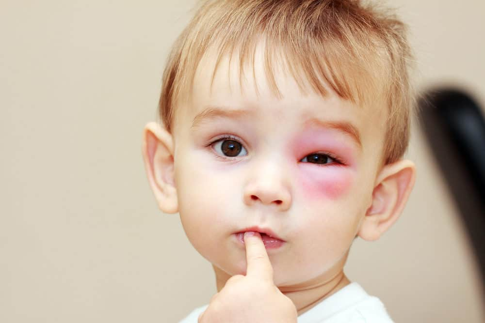 Little boy with wasp sting on the eye